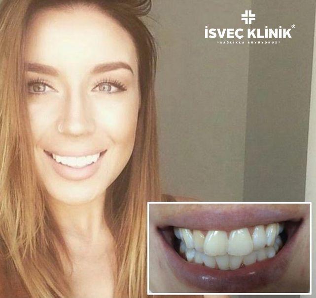 Sağlıklı ve bembeyaz gülümsemeye hazırmısınız !  Diş beyazlatma tedavisi ile muhteşem gülümseme 😀  ☎02122155535 #isvecklinik #disbeyazlatma #diş #zirkonyum #implant