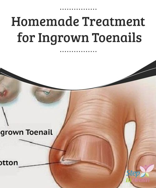 Homemade Treatment for Ingrown #Toenails   When the #skin around the #nail becomes reddened and #inflamed, you may be possibly suffering from ingrown toenails. Here is a #homemade treatment.