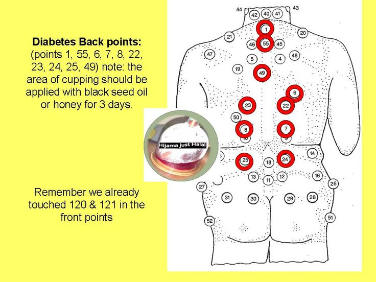 Hijama cupping Diabetes Back Cupping points. Ready for surpise! Call me now! Would like to train! I am all yours.