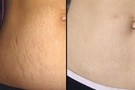Home Remedies for Stretch Marks That Works Surprisingly Well