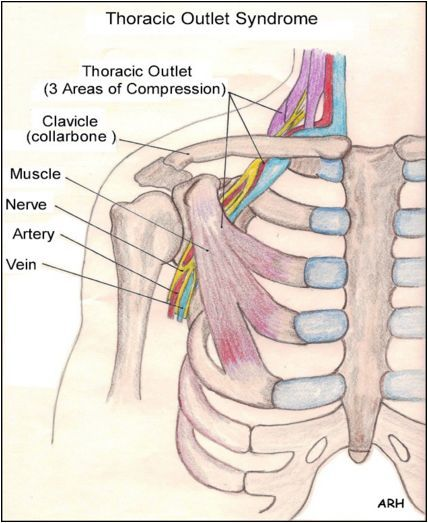 cervical rib thoracic outlet syndrome overview diagnosis