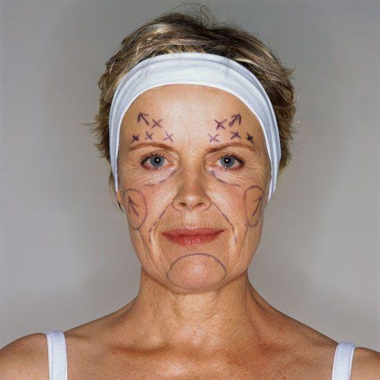 Risultato della ricerca immagini di Google per http://www.articlesweb.org/blog/wp-content/gallery/plastic-surgery-prices-the-price-we-pay-for-beauty/plastic-surgery-prices-the-price-we-pay-for-beauty-14.jpg