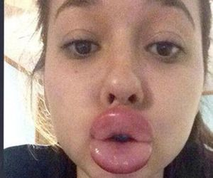 Teens Try To Copy Kylie Jenner's Lips Using Shot Glasses...and Regret It