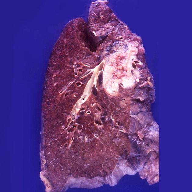 Cut surface of the lung demonstrates a large mass in the upper lobe. Although squamous cell carcinoma of the lung is traditionally known to arise centrally, the incidence of peripherally located SCC is increasing.