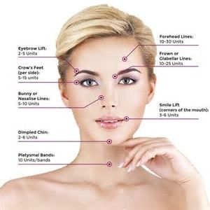 Image result for Botox Injection Sites Chart