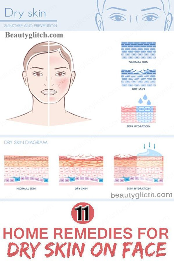 home remedies for sebum on face