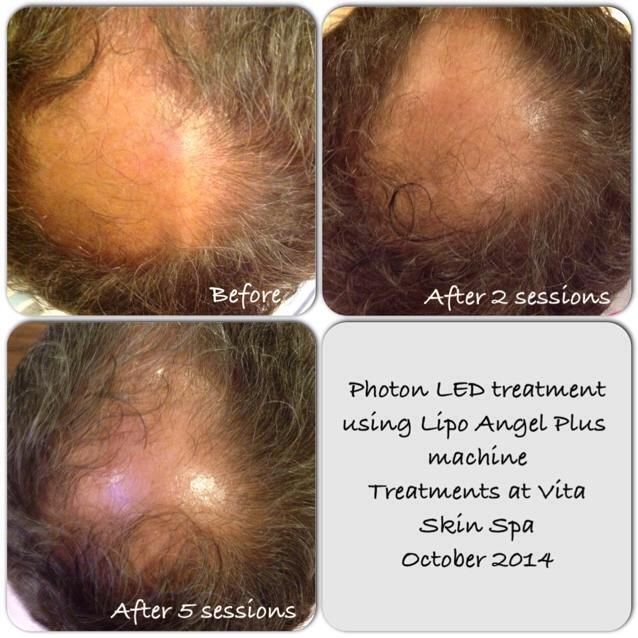 Hair Rejuvenation with Photon Light Therapy now available at Contenta Therapies, Highnam Business Centre, Gloucester