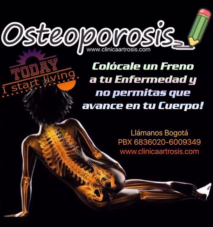 La osteoporosis debe controlarse en forma científica con médicos especialistas en ortopedia y traumatología. Visítenos en la Clínica de Artrosis y Osteoporosis www.clinicaartrosis.com PBX: 6836020, Teléfono Movil: 317-5905407 en Bogotá - Colombia.