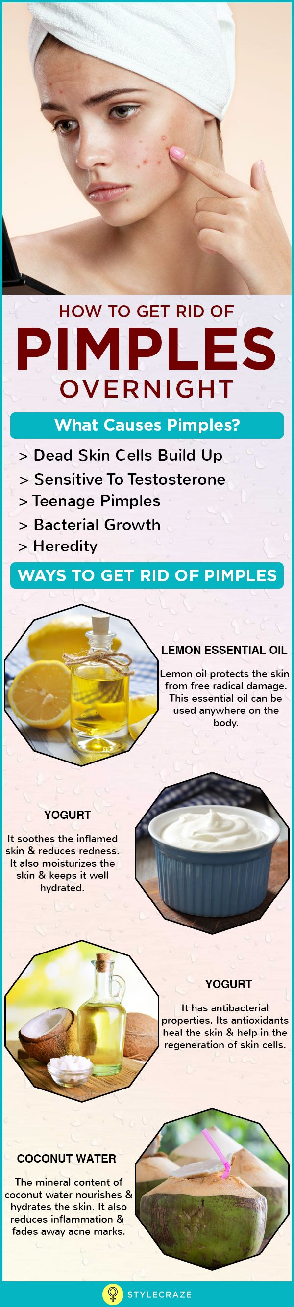 Pimples or acne are skin lesions/inflammations that occur when the sebaceous glands (oil glands) of the skin get infected with bacteria and swell up. Pimples are also known as pustules or papules, spots, and zits. The sebaceous glands that are present throughout the skin, except in the palms and soles, secrete a waxy or oily substance called sebum. The sebum helps to maintain the oil balance of the skin and makes it look healthy. When there is any abnormality in the sebaceous gland.....