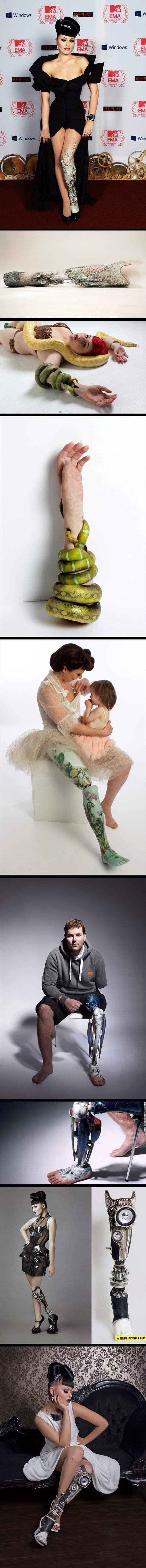 Badass prosthesis…