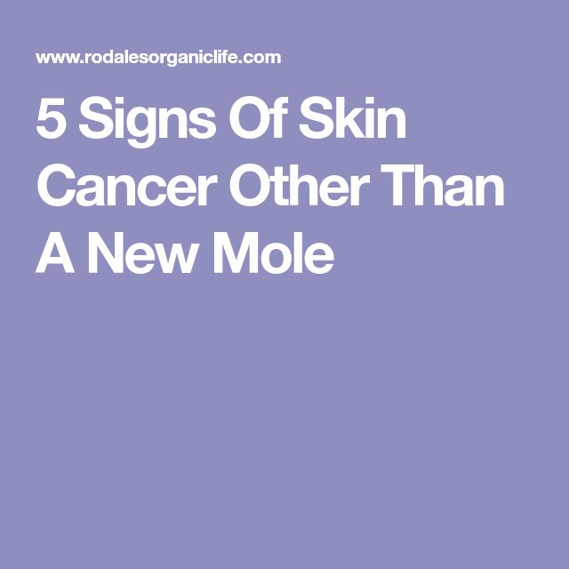 68 Best Facing Our Risk Of Cancer Images On Pinterest: Best 25+ Cancerous Moles Ideas On Pinterest