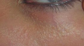 white bumps under eye