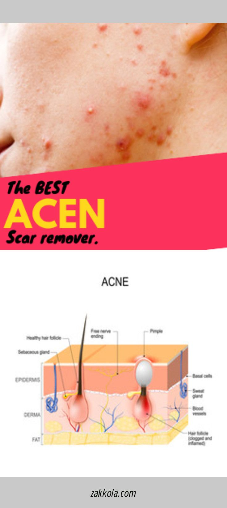 How to Draw Out a Pimple Home Remedies for Cysts …
