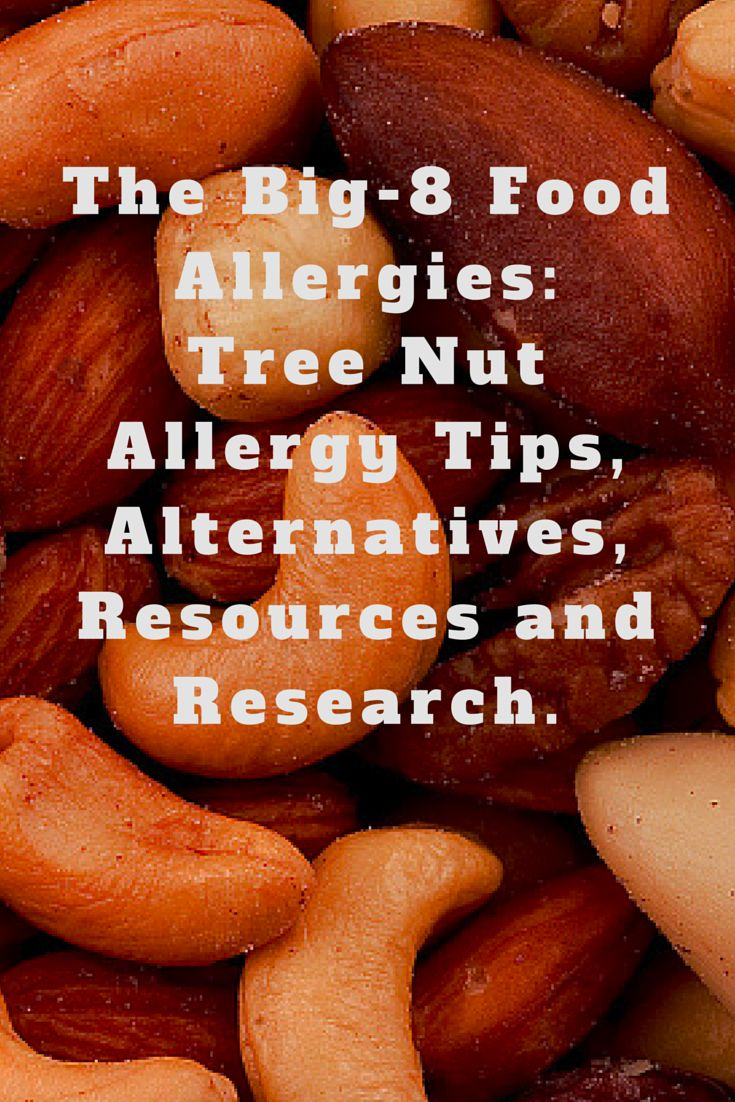 The Big-8 Food Allergies: Tree Nut Allergy Tips, Alternatives, Resources and Research.