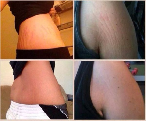 How to get rid of stretch marks? Stretch marks are caused by a rapid stretching of your skin and is often the result of rapid growth, pregnancy weight gain or weight loss. There are two main types of stretch marks: the reddish or purple lines or the common white-ish marks, which are old stretch marks.
