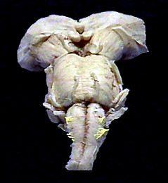 Aula de Anatomia   Nervos Cranianos