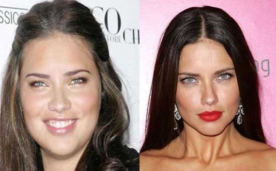 Adriana Lima Before And After Plastic Surgery 14