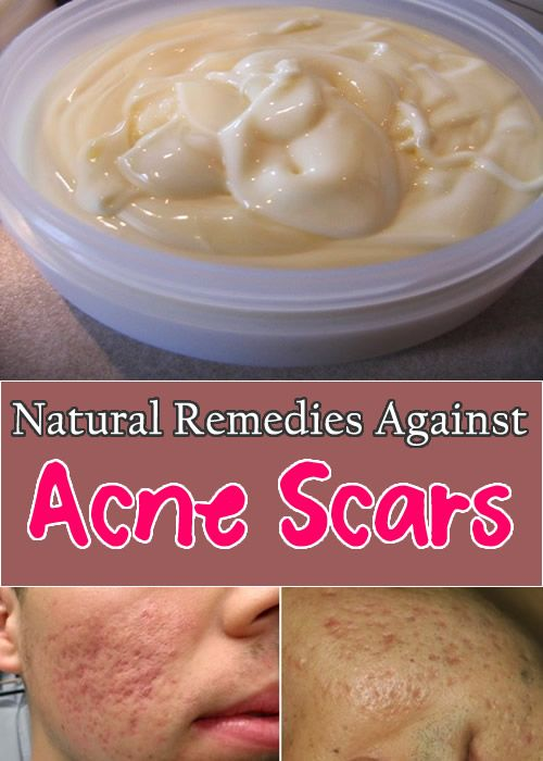 I found out what acne is at an early age. Once, when I was in 4th grade, I woke up with a face smothered with pimples, and I could get rid of them only in my early twenties. And I'm talking about deep, and painful pimples, full of pus and blood. That was disgusting, unpleasant …