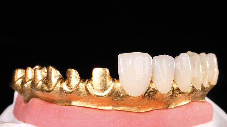 Toronto Bridge made from Sintermetall with Prettau® Anterior® Crowns  - Michele Frapporti - Dental Laboratory Steger, Brunico (South Tyrol/Italy)