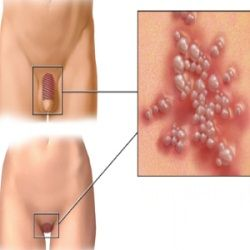 Genital Herpes Pain Relief – Home Treatments For Herpes Outbreak Pain