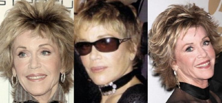 Celebrity Neck And Chin Jobs Jane Fonda Plastic Surgery Before And After - http://plasticsurger.com/celebrity-neck-and-chin-jobs-jane-fonda-plastic-surgery-before-and-after/