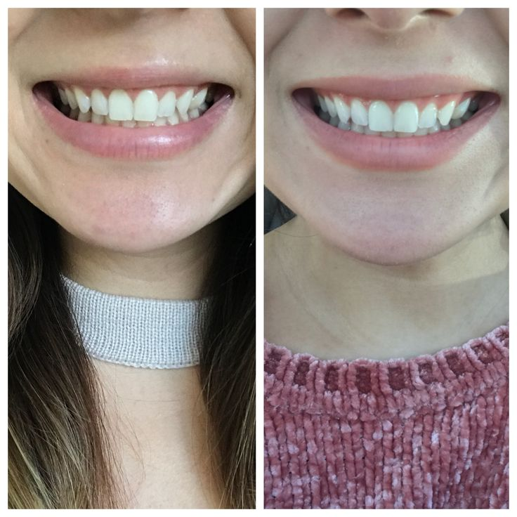 Before and After of using Smile Brilliant's Teeth Whitening Kit!