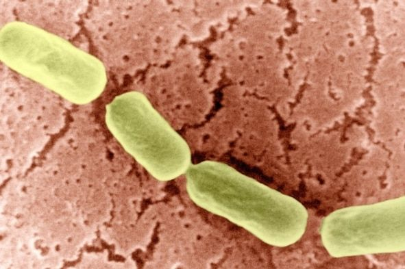 Clostridium botulinum harbours a protein that acts like a prion in other bacteria. Credit: BISP Getty Images