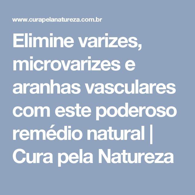 Elimine varizes, microvarizes e aranhas vasculares com este poderoso remédio natural | Cura pela Natureza