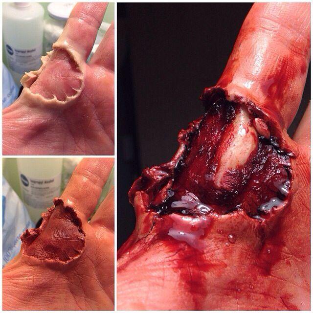 Sculpting wax exposed bone