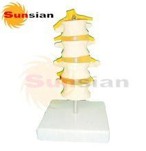 Lumbar vertebrae with Prolapsed Intervertebral Disc ,human skeleton anatomical  model //Price: $US $31.00 & FREE Shipping //
