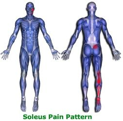 Pain Pattern of the Soleus Muscle