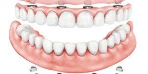 DÖRT DİŞ İMPLANT VE SABİT DİŞ UYGULAMASI  Bazı hastalarımız yanlış beslenme, yaş faktörü,genetik faktörler ve kemik erimesi gibi nedenlerle yıllar içerisinde tüm dişlerini kaybedebilmektedir.Bu gibi durumlarda uyguladığımız tedavi seçeneklerinden biri 4 implantla sabit diş yöntemidir. Hastamızın detaylı muayenesi ve röntgen incelemesinin ardından All on 4 yönteminde yerleştirilen implantların aynı gün üzerlerine sabit  protez yapılabilir.