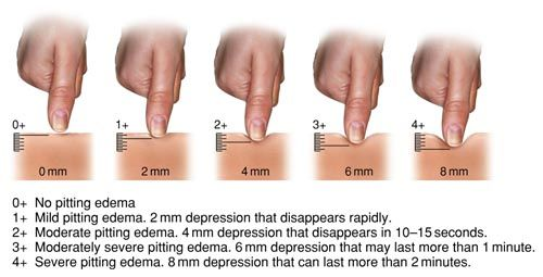 "Grades of Pitting Edema. Pinning this for all the nurses I follow who's charting will say things like ""Non pitting 2+"""