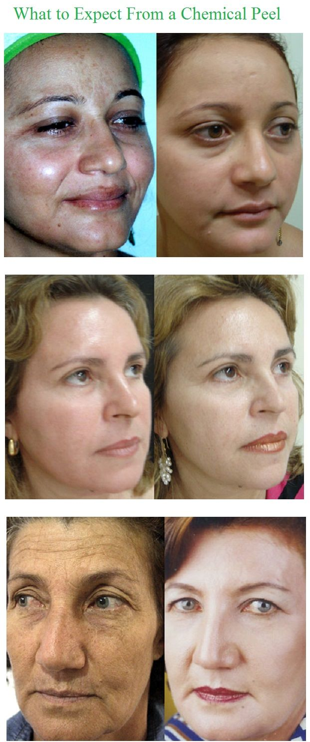 Chemical peel is a noninvasive procedure which results in improvement of epidermis condition and often also of dermis condition. In this purpose we use the influence of various chemical substances (chemical peel) or mechanical (microdermabrasion) or physical processes (CO2 laser, nitrous oxide, liquid nitrogen).