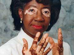 Top 10 Most Interesting Vitiligo Facts - http://www.skincarearticles.com/top-10-most-interesting-vitiligo-facts/#more-3724