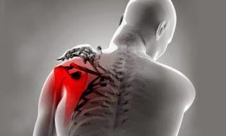 pm-acupuntura - Energía y Bienestar, vivir sin dolor. Recupera tu salud: Dolor de hombro tratado con acupuntura