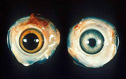 Chicken eye with Marek's disease on the left, and normal chicken eye on the right: Click here for full photo caption.