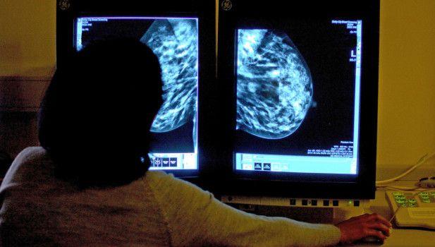 Disse genene avgjør sannsynligheten for å overleve brystkreft
