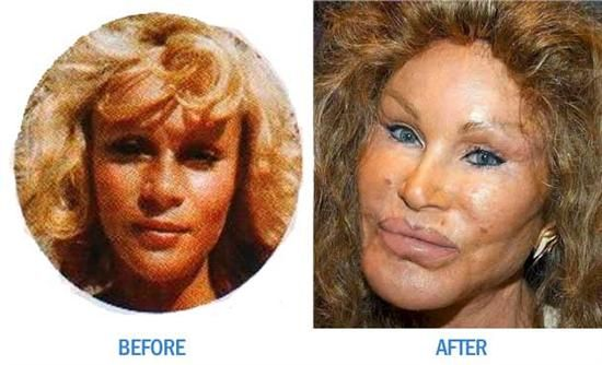 Worst celebrity botox photos