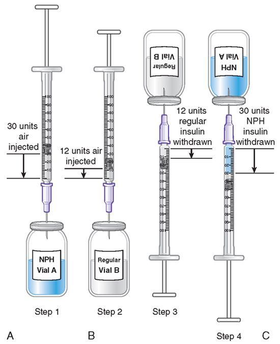 Diabetic Injection Sites Diagram: Mixing NPH And Rapid/Short-Acting (Regular) Insulin In The