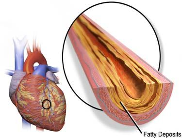 European Natural Remedies For Atherosclerosis   #naturalhealing #healthyliving #naturalhealth #healthy #homeremedies #natural #naturalremedies #herbalremedies #naturalcures #holistic #holistichealing #healthtips #herbalist #healthcoach    Like and Share or Tag a friend who would like to read this!     To read full article visit http://www.europeanhomeremedies.com/2016/12/19/european-natural-remedies-for-atherosclerosis/