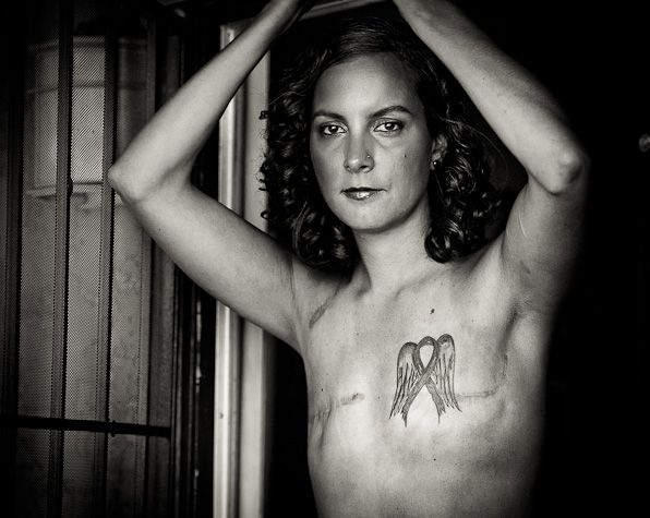 The Scar Project. Images of women baring their breast cancer battle scars. It's going to be in DC for one week in October.