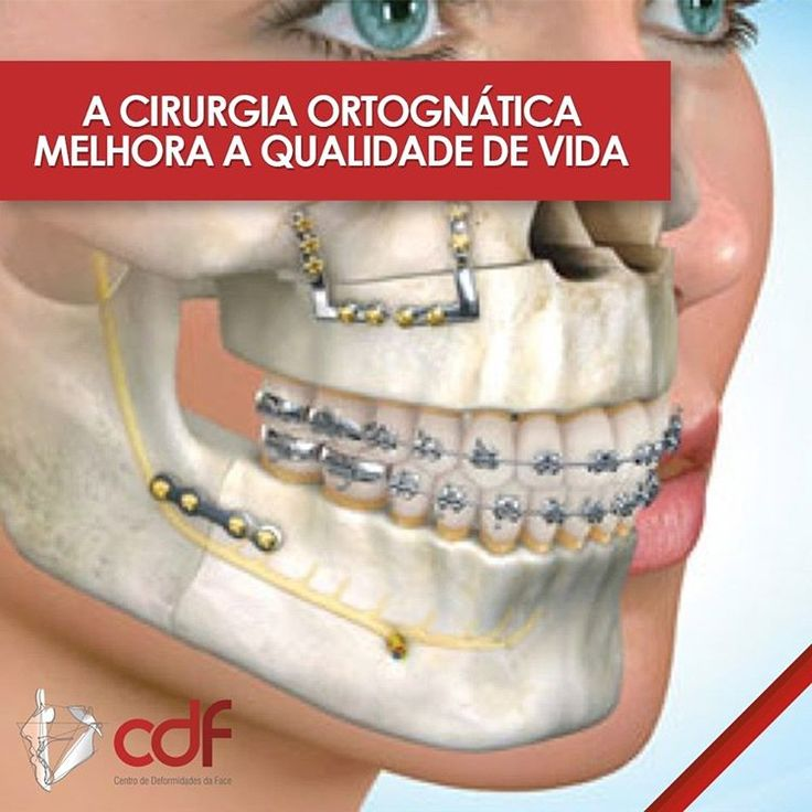 A cirurgia ortognática visa a correção das deficiências funcionais, mas estética...