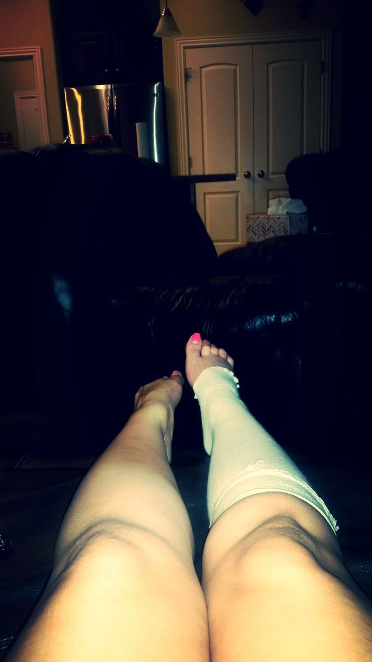 Footnotes: My LisFranc Injury and the Road to Recovery
