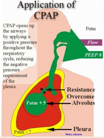 1000+ images about respiratory therapist on pinterest ... diagram of peeps #1