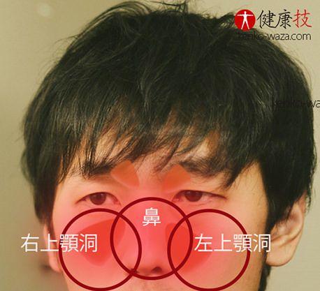 蓄膿膿み出し方法1健康技.com