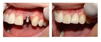 To get dental implants placed, on average two visits are needed in Budapest. In the first visit 2 or 3 days must be spent in Budapest, when our dentists put in place the dental implants. After a period of 3-6 month healing time, you will come again to Budapest, and you will receive the abutments and crowns. This visit to Budapest requires 4-7 days, depending on the number of crowns and implants.
