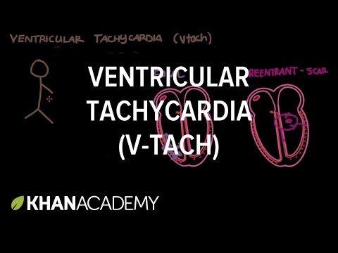 Ventricular tachycardia (Vtach)   Cardiac dysrhythmias and tachycardias   Khan Academy
