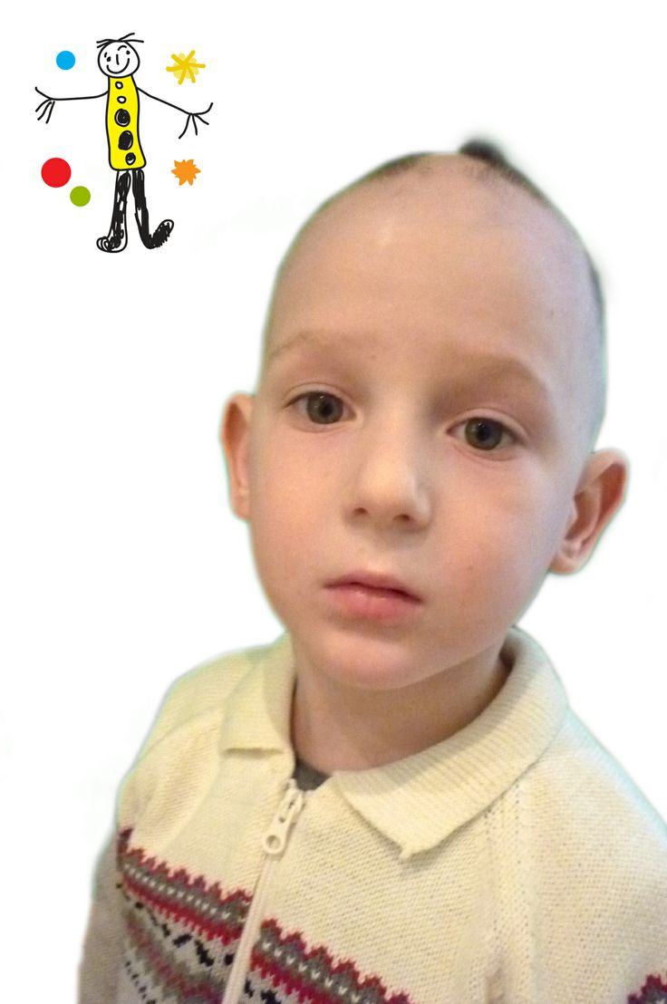 Alopecia universalis in children. I'm 5. It's month three into my alopecia universalis treatment. Provided courtesy of http://www.alopecia-areata.com