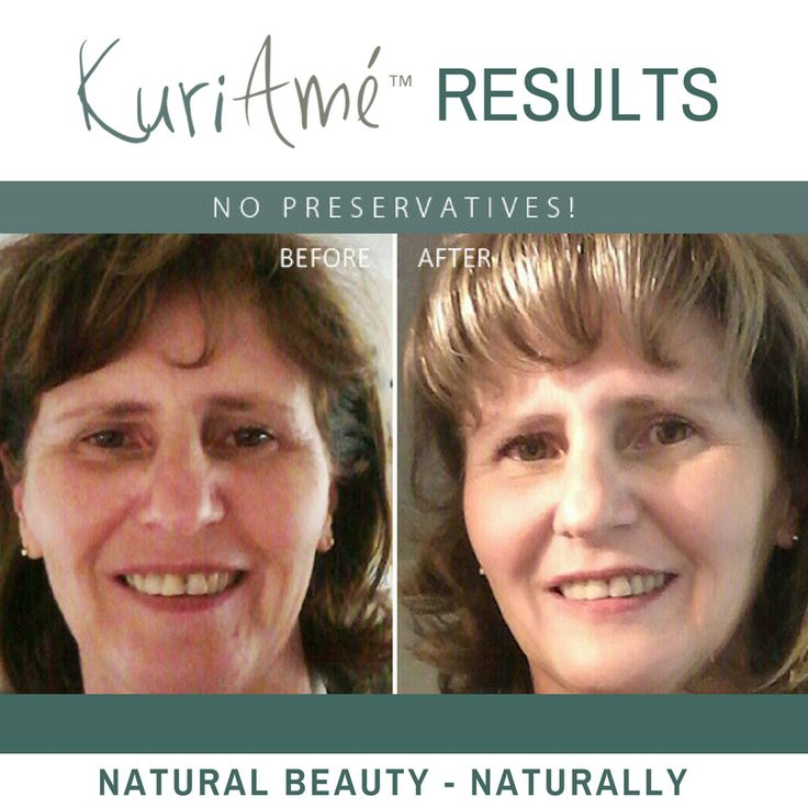 THE RESULTS SPEAK FOR THEMSELVES! The results of our proudly South African skincare range are truly amazing. These results show a marked difference in skin conditioning and general skin health over only 8 weeks. To see more video's and testimonials of clients using our products and enjoying the results, simply follow this link to our websitehttp://kuriame.co.za/en/home/ or check out our Facebook timeline. Get your full set of 6 products PLUS a FREE Aloe Plasm Plus for only R1450 including…